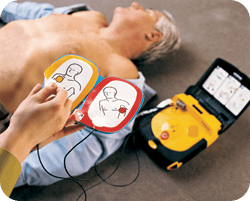 For employers this does not mean you have to purchase an Automated External Defibrillator for your workplace as the requirement for a defibrillator is still dependent on your needs assessment.